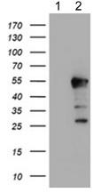 Western blot - Anti-HEXO antibody [1B3] (ab119413)