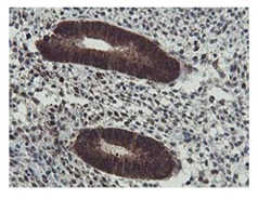 Immunohistochemistry (Formalin/PFA-fixed paraffin-embedded sections) - Anti-HEXO antibody [1B3] (ab119413)
