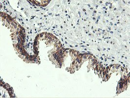 Immunohistochemistry (Formalin/PFA-fixed paraffin-embedded sections) - Anti-USP10 antibody [2E1] (ab119418)