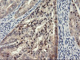 Immunohistochemistry (Formalin/PFA-fixed paraffin-embedded sections) - Anti-PSMA4 antibody [1H10] (ab119419)