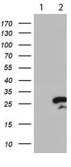 Western blot - Anti-RGS16  antibody [4E5] (ab119424)