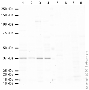 Western blot - Anti-Sex Hormone Binding Globulin antibody (ab119436)