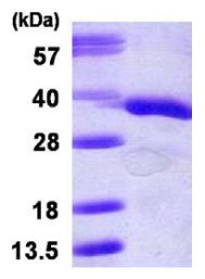 SDS-PAGE - RACK1 protein (His tag) (ab119442)
