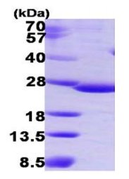 SDS-PAGE - C9orf103 protein (His tag) (ab119445)