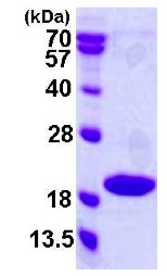 SDS-PAGE - p18 INK4c protein (ab119460)