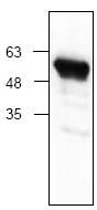 Western blot - Anti-S tag antibody (ab119481)