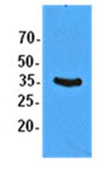 Western blot - Anti-EIF2S1 antibody [5E10] (ab119495)