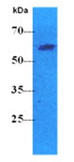 Western blot - Anti-PKLR antibody [AT1E3] (ab119500)
