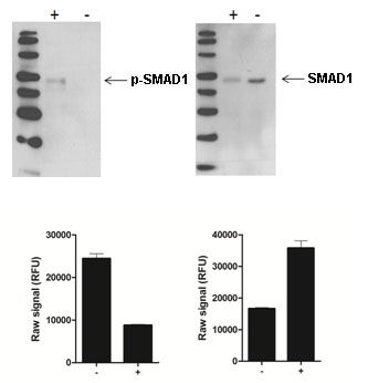 Sandwich ELISA - PhosphoTracer SMAD1 (pS463/465) ELISA Kit  (ab119647)