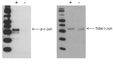 Western blot - PhosphoTracer c-Jun (pS73) + total c-Jun ELISA Kit (ab119657)