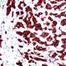 Immunohistochemistry (Formalin/PFA-fixed paraffin-embedded sections) - Anti-Cytokeratin 7 antibody [SP52] (ab119697)
