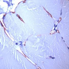 Immunohistochemistry (Formalin/PFA-fixed paraffin-embedded sections) - Anti-Dystrophin antibody [SPM499] (ab119698)