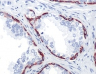 Immunohistochemistry (Formalin/PFA-fixed paraffin-embedded sections) - Anti-Cytokeratin 14 antibody [SP53], prediluted (ab119700)