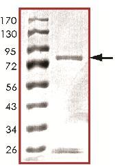 SDS-PAGE - Met (c-Met) protein (ab119729)