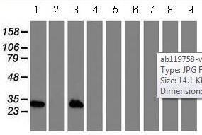 Western blot - Anti-NNMT antibody [3D8] (ab119758)