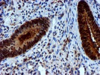 Immunohistochemistry (Formalin/PFA-fixed paraffin-embedded sections) - Anti-NNMT antibody [3D8] (ab119758)