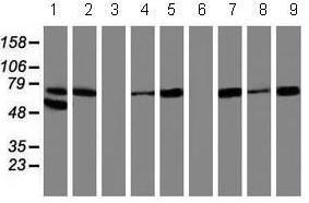 Western blot - Anti-15 Lipoxygenase 1 antibody [3G8] (ab119774)