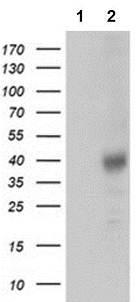 Western blot - Anti-Tristetraprolin antibody [1A2] (ab119779)