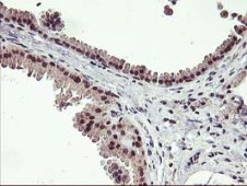 Immunohistochemistry (Formalin/PFA-fixed paraffin-embedded sections) - Anti-Tristetraprolin antibody [1A2] (ab119779)