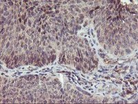 Immunohistochemistry (Formalin/PFA-fixed paraffin-embedded sections) - Anti-PNMT antibody [1D2] (ab119784)