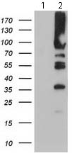 Western blot - Anti-PFKP antibody [1D6] (ab119796)