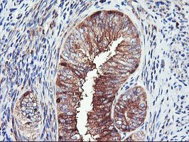 Immunohistochemistry (Formalin/PFA-fixed paraffin-embedded sections) - Anti-PFKP antibody [1D6] (ab119796)