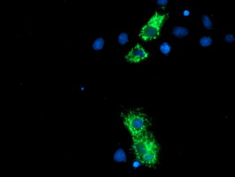 Immunocytochemistry/ Immunofluorescence - Anti-NLN antibody [1D6] (ab119802)