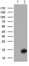 Western blot - Anti-Cystatin S antibody [1A3] (ab119807)