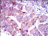 Immunohistochemistry (Formalin/PFA-fixed paraffin-embedded sections) - Anti-Smad2 antibody [5G7] (ab119907)
