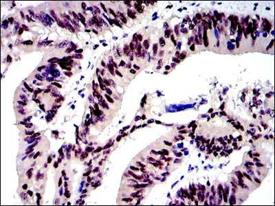 Immunohistochemistry (Formalin/PFA-fixed paraffin-embedded sections) - Anti-c-Jun antibody [5B1] (ab119944)