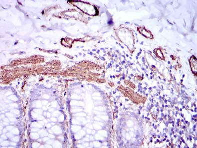 Immunohistochemistry (Formalin/PFA-fixed paraffin-embedded sections) - Anti-alpha smooth muscle Actin antibody [4A4] (ab119952)