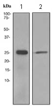 Western blot - Anti-Tubulin Polymerization Promoting Protein antibody [EPR3315] (ab119987)