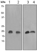 Western blot - Anti-Stathmin 1 antibody [EP1572] (ab119991)