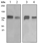 Western blot - Anti-Integrin beta 3 antibody [EPR2342] (ab119992)