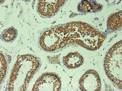 Immunohistochemistry (Formalin/PFA-fixed paraffin-embedded sections)-DIAPH2 antibody(ab12319)