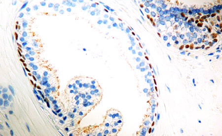 Immunohistochemistry (Formalin/PFA-fixed paraffin-embedded sections) - Anti-AMACR antibody (ab12498)