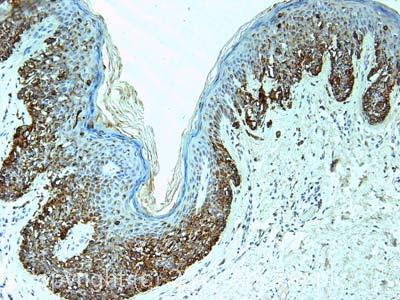 Immunohistochemistry (Formalin/PFA-fixed paraffin-embedded sections)-Melanoma antibody [PNL2](ab12502)