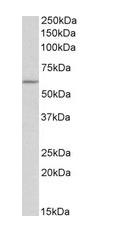 Western blot - Anti-TPH2 antibody (ab121013)