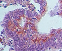 Immunohistochemistry (Formalin/PFA-fixed paraffin-embedded sections) - Anti-GBP1 antibody (ab121039)