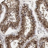 Immunohistochemistry (Formalin/PFA-fixed paraffin-embedded sections) - Anti-SPIN2B antibody (ab121097)