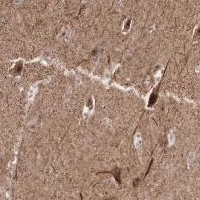 Immunohistochemistry (Formalin/PFA-fixed paraffin-embedded sections) - Anti-Acyl-coenzyme A Thioesterase 4 antibody (ab121116)