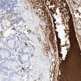 Immunohistochemistry (Formalin/PFA-fixed paraffin-embedded sections) - Anti-C4BPA antibody (ab121123)