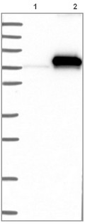 Western blot - Anti-C4BPA antibody (ab121141)