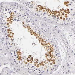 Immunohistochemistry (Formalin/PFA-fixed paraffin-embedded sections) - Anti-FAM181A antibody (ab121144)