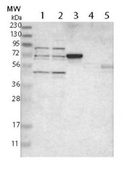 Western blot - Anti-ZNF589 antibody (ab121173)