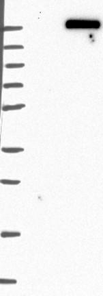 Western blot - Anti-DOCK8 antibody (ab121177)