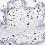 Immunohistochemistry (Formalin/PFA-fixed paraffin-embedded sections) - Anti-PTP4A1 antibody (ab121185)