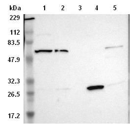 Western blot - Anti-PLEKHA2 antibody (ab121218)