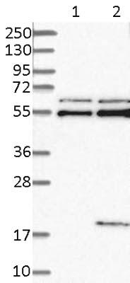 Western blot - Anti-KK-LC-1 antibody (ab121219)