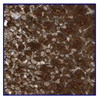 Immunohistochemistry (Formalin/PFA-fixed paraffin-embedded sections) - Anti-EXD2 antibody (ab121236)